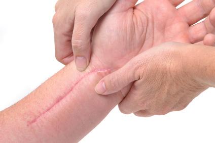 secuela cicatriz
